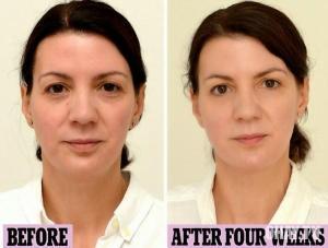 Kết quả của người phụ nữ uống 3 lít nước mỗi ngày sau 4 tuần