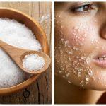 Trị mụn và sẹo thâm bằng muối chỉ trong 1 tuần