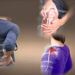 Điều trị bệnh xương khớp bằng các loại thuốc đông y