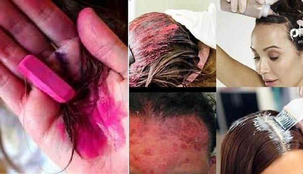 Những nhân tố gây tóc bạc sớm ngoài tuổi tác